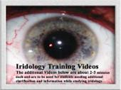 Iridology Videos